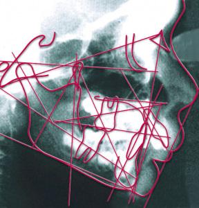 Fernröntgen-Seitenaufnahme