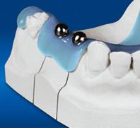 Mit einer Messkugelschablone können das vertikale Knochenangebot und die mögliche Implantatlänge festgestellt werden.