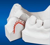 Mit einem Sägeschnittmodell kann auch die Schleimhaut geschätzt und übertragen werden.